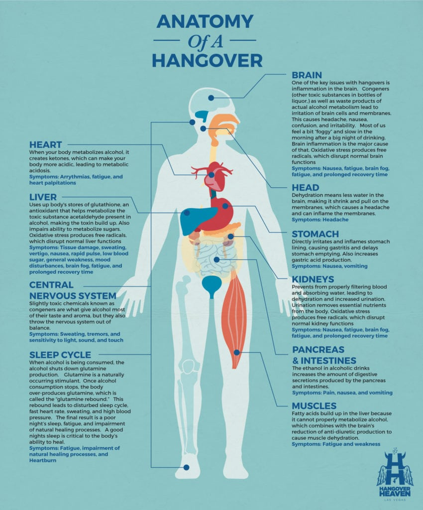 Chart explaining how various body parts are affected when you have a hangover.